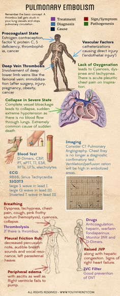 Pulmonary embolism (can be caused by DVT). Causes, signs, risk factors, diagnosis and management of pulmonary embolism Nursing Tips, Nursing Notes, Nursing Programs, Nursing Information, Critical Care Nursing, Respiratory Therapy, Respiratory System, Lunge, Nursing Students