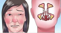 Stuffy Nose Remedies With cold season upon us, there's no better time to learn how to get rid of a stuffy nose. - With cold season upon us, there's no better time to learn how to get rid of a stuffy nose. Home Remedies For Flu, Flu Remedies, Natural Home Remedies, Remedios Congestion Nasal, Nasal Congestion, Gripe O Influenza, How To Unblock Nose, Clear Stuffy Nose, Blocked Nose