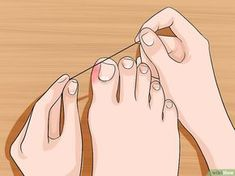 5 Ways to Relieve Ingrown Toe Nail Pain - wikiHow. ❣Julianne McPeters❣ no pin limits 5 Ways to Relieve Ingrown Toe Nail Pain - wikiHow AND before you try these do a little self homework How to Relieve Ingrown Toe Nail Pain. An ingrown toe nail occurs Health And Beauty Tips, Health And Wellness, Health Tips, Health Fitness, Zumba Fitness, Beauty Tricks, Health Remedies, Home Remedies, Natural Remedies