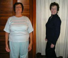 """Susan said, """"At I figured I couldn't lose much weight . I lost 40 pounds (I've kept it off 4 years). I feel energetic and spry. My arthritis is not as painful."""" Susan not only looks great, but she also FEELS great! Weight Loss Diet Plan, Easy Weight Loss, Weight Loss Program, Weight Loss Motivation, Healthy Weight Loss, Ways To Burn Fat, How To Lose Weight Fast, Weight Watcher Girl, Stubborn Belly Fat"""