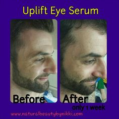 This is amazing, and I am thrilled to share it with you all! Younique's Uplift Eye Serum is formulated to replenish, moisturize, and reduce the appearance of fine lines and wrinkles. Well I am here to let you know, it does just that! Take a look at these before and after photos and see for yourself. So if you've got wrinkles that you aren't happy about, then you need Uplift Eye Serum in you life.
