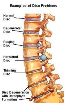 spinal problems  Raya Clinic- Chiropractic, Nutrition, Acupuncture, Spinal Decompression and more 860.621.2225