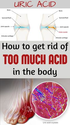How to get rid of too much acid in the body - WomenDiva.com
