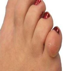Dealing with Corns and Calluses
