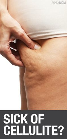 Lower body exercises to blast cellulite.