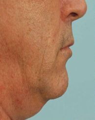 Facial Aerobics: Treat And Do Away With Sagging Cheeks And Baggy Jowls Permanently Sagging Cheeks, Face Lift Exercises, Natural Face Lift, Chubby Cheeks, Best Yoga, Aerobics, Workout Programs, Facial, Slim