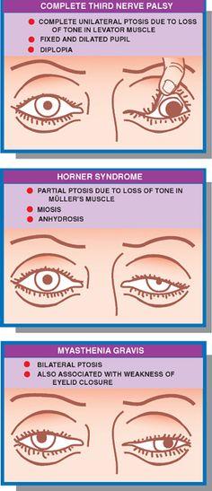 Eye Facts, Brain Facts, Neurological Assessment, Internal Capsule, Nerve Palsy, Anatomy Flashcards, Occipital Lobe, Visual Cortex