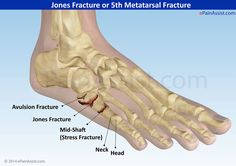 Jones Fracture: 5th metatarsal fracture -- blood supply here is low and bone ill not heal well.  will require bone grafting and internal fixation