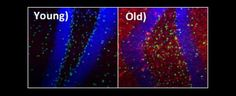 Scientists have identified a drug that rejuvenates ageing muscle and brain tissue