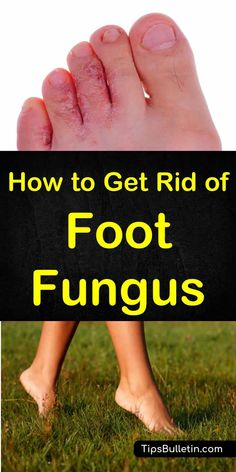 How to Get Rid of Foot Fungus - with pictures of athletes foot and tips on how to use home remedies to get rid of foot fungus fast.