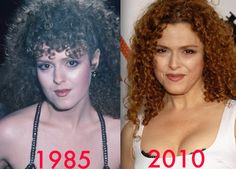Bernadette Peters had good plastic surgery around The before and after pictures show that she had a facelift and Botox injections. Lower Face Lift, The Goodbye Girl, Face Lift Exercises, Plastic Surgery Before After, Bernadette Peters, Celebrities Before And After, Celebrity Plastic Surgery, Botox Injections, Celebrity Faces
