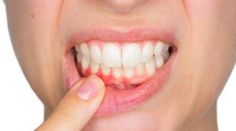 Top Oral Health Advice To Keep Your Teeth Healthy. The smile on your face is what people first notice about you, so caring for your teeth is very important. Unluckily, picking the best dental care tips migh Gum Disease Treatment, Teeth Pictures, How To Prevent Cavities, Perfect Smile, Beautiful Smile, Best Teeth Whitening, Oral Health, Health Care, Dental Health