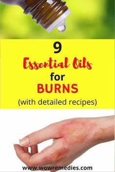 best essential oils for burns