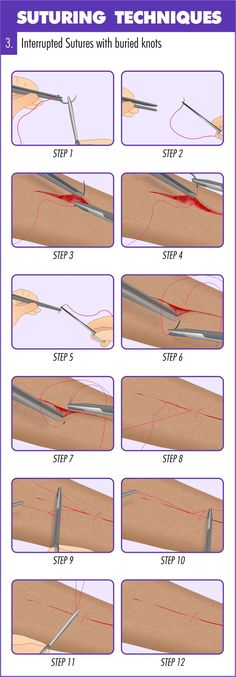 Complete Guide to Mastering Suturing Techniques This (infographic) guide runs you through an introduction to suturing before taking you step-by-step through how & when to place 11 suturing techniques. Surgical Suture, Surgical Tech, Nursing Tips, Nursing Notes, Nursing Programs, The Human Body, Emergency Medicine, Medical Information, Medical Facts