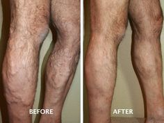 Ablation Varicose Veins, New Surgery Treatment – Even though there have been new procedures introduced recently to treat varicose veins, surgical ablation varicose veins is still considered the standard way to treat them. The definition of ablation is: The surgical removal of an organ, structure, or part.... http://adf.ly/rrCES