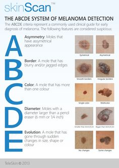 Early detection of moles significantly reduce the chance of skin cancer. That is why learning the ABCDE rule for skin cancer is so important.