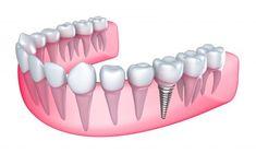 Dental Implants Clinic in Abu Dhabi - Looking for the best dental implants in Abu Dhabi? Here we provide the best dental implants. Smilerite is one of the best dental clinics in abu dhabi UAE Implants Dentaires, Best Dental Implants, Single Tooth Implant, Tooth Replacement, Dental Bridge, Dental Center, Dental Crowns, Dental Surgery, Sinus Surgery