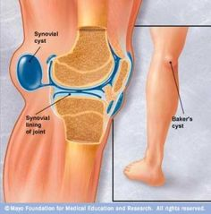 Baker's cyst are fluid filled swellings arising from the knee and present in the back of the knee. They are associated with osteoarthritis, gout or meniscal injuries. The patient complains of pain in the back of the knee. Knee Arthritis, Types Of Arthritis, Rheumatoid Arthritis, Baker's Cyst, Swollen Knee, Hip Problems, Medical Problems, Knee Pain Relief, Shoulder Workout