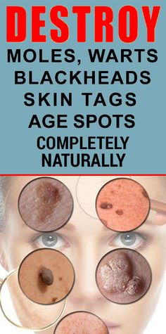 Remove Moles, Warts, Blackheads, Skin Tags and Age Spots with These Natural Remedies Eye Stye Remedies, Natural Wart Remedies, Health Remedies, Mole Removal, Skin Tag Removal, Homemade Skin Care, Warts, Health And Beauty Tips, Health Tips