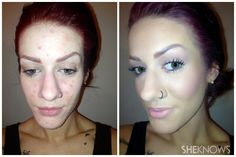 Skin before and after, 9 step-guide to clear skin. Wow! This is crazy, def not for every day (way too much makeup for me) but good for going out or special occasion! #acnebeforeandafter