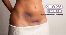 7 signes d'alerte du cancer du col utérin que les femmes doivent Observer!!