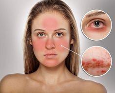 Rosácea - Causas, Sintomas e Tratamentos | Dicas de Saúde