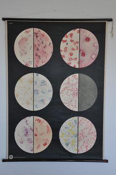Original Mid Century Microbiology Print. Pull Down Wall Map. East Germany.. $220.00, via Etsy.