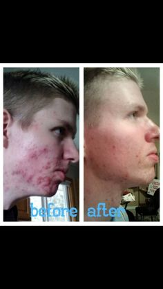 Nerium Before and After. Visit Mparker7.nerium.com today for more information!