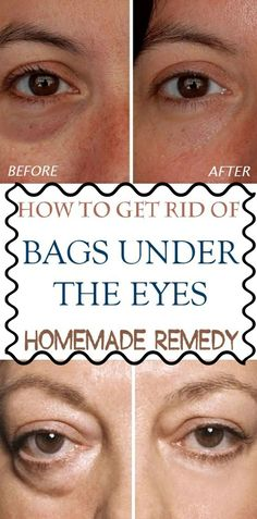 How To Get Rid Of Bags Under The Eyes - Homemade Remedy