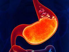 Heartburn Symptoms, Reflux Symptoms, Heartburn Relief, Gerd Symptoms, Heartburn Medicine, Natural Treatments, Natural Cures, Crunches, Natural Remedies