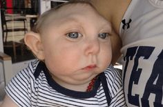 Even when doctors declared that it would be medically impossible for a baby without half of his skull and brain to live, Baby Jaxon Emmett Buell of Tavares, Florida defies all odds and celebrated his 1st birthday with proud parents, Brandon and Brittany Buell.  http://www.thebitbag.com/florida-baby-with-incomplete-skull-celebrates-1st-birthday-defies-all-odds-miracle-goes-viral-online/117716