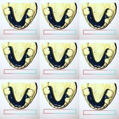 We recommend an orthodontic screening at age 7  Wir empfehlen: Mit 7 Jahren zum Kieferorthopäden!  #brace of the #day #xmas #zahnspange #black #schwarz  #orthodontics #orthodontist #kieferorthopädie #kieferorthopäde #kfobabai #kinder #hannover #ortodoncia #ortodontia #dental #dentistry #dentist #dentista #dentalhealth #dentallife #dentalassistant #dentalart #christmaseve #christmas #blackisbeautiful #weihnachten #santaclaus #quote