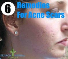 Natural Herbal Remedies for Acne The best acne treatment theacnecode.com