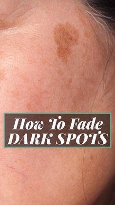 Here's a Great Solution Recommended by Beauty Experts to clear up dark spots, age spots & sun spots. Beauty Care, Beauty Skin, Health And Beauty, Beauty Tips, Beauty Hacks, Lighten Dark Spots, Dark Spots On Skin, Brown Spots, How To Fade