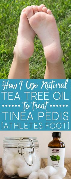 Learn how I successfully use tea tree oil to treat tinea pedis (athletes foot) instead of over-the-counter anti-fungal products. I used tea tree oil and the fungus was gone in DAYS!  via @brendidblog