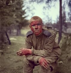 Советский солдат-танкист из 23-й армии, раненый (обгоревший) во время боев за Вуосалми (Выборгско-Петрозаводская стратегическая наступательная операция).