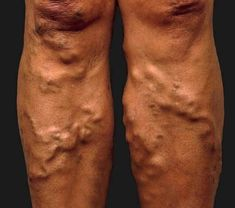 Varicose Veins – How do you deal with them? The basic thing to note here is that varicose veins are the result of mineral deficiency. One other point that was made – Varicose veins on the legs will also be mirrored elsewhere in the body Home Health Remedies, Natural Home Remedies, Herbal Remedies, Varicose Vein Remedy, Varicose Veins Treatment, Alternative Health, Natural Treatments, Natural Medicine, Natural Health