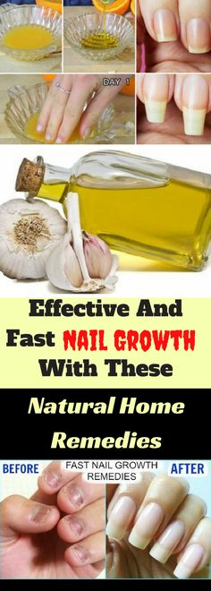 Many factors contribute to the growth of the nails, health problems, some medications or lack of nutrients. The protein keratin is part of the nails and is very important for their growth. Here are some homemade remedies that will boost the nail growth.