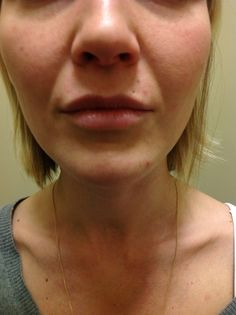 Before lip filler by Jennifer Cline, lip injection specialist!  What she's known for around Salt Lake City!  She is the best!