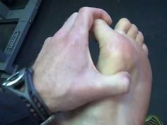 Resolving Plantar Fasciitis - - When you run, this happens and I'm really glad i found this!