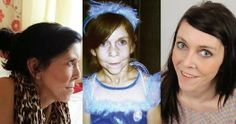 Facelift Helps Teen with Rare Condition Return to Normal Life Medical News, Normal Life, Conditioner, Teen