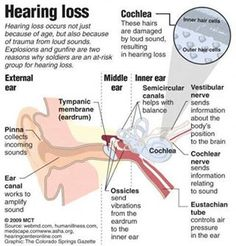 Hearing Loss  From: