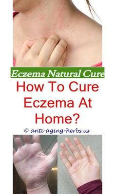 Does eczema affect the dermis.All natural eczema treatment.Best vitamins for eczema and psoriasis - Eczema Cure. Dr. Oz, Best Eczema Treatment, Natural Treatments, Natural Remedies, Doterra, Eczema Around Eyes, Eczema Scars