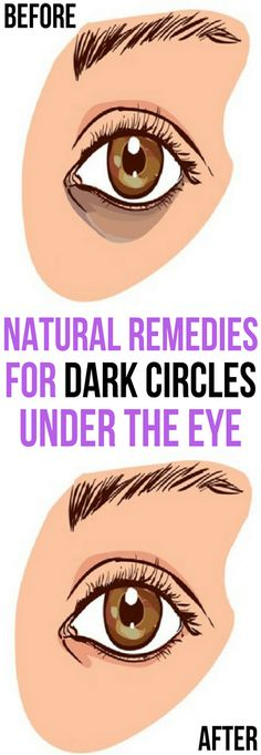 Get Rid of Dark Circles Under the Eyes With This Natural Remedies