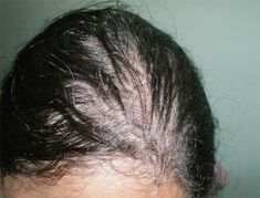 Hair Loss Caused By Thyroid Problem Hair Loss Causes, Prevent Hair Loss, Evening Primrose Oil Benefits, Dramatic Hair, Oil For Hair Loss, Hair System, Hair Falling Out, Hair Starting