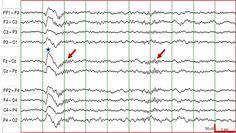 EEG: K complex and sleep spindles