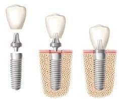 image of dental implant procedure