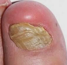 26 Best Nail Psoriasis Information images in 2016 | Health tips ...