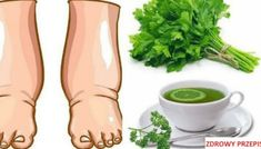 Watch This Video Ambrosial Home Remedies Swollen Feet Ideas. Inconceivable Home Remedies Swollen Feet Ideas. Foot Remedies, Headache Remedies, Hair Remedies, Skin Care Remedies, Acne Remedies, Health Remedies, Natural Remedies, Water Retention Remedies, Toenail Fungus Remedies