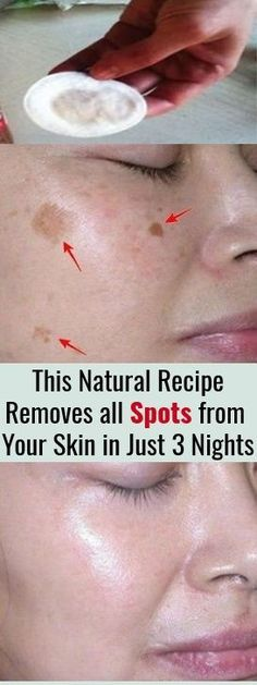 I m Shocked This Natural Remedy Removed all Spots from My Skin in Just 3 Nights This 2 ingredient remedy removes all spots from your face in just 3 nights. For the preparation you will need completely natural ingredients.